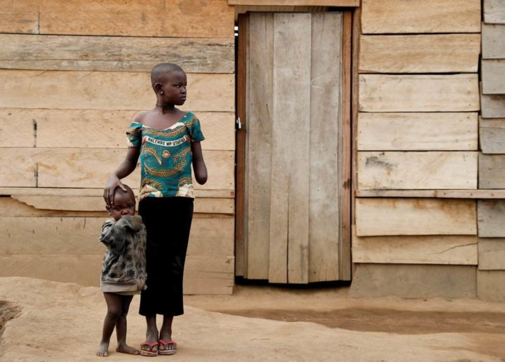 Mave Grace, 11, who had part of her arm chopped off by militiamen when they attacked the village of Tchee, stands with her sister Racahele-Ngabausi, aged two, in an Internally Displaced Camp in Bunia, Ituri province, eastern Democratic Republic of Congo, April 12, 2018. According to witnesses, militiamen killed her pregnant mother, her three brothers and injured her sister, Racahele-Ngabausi. REUTERS/Goran Tomasevic